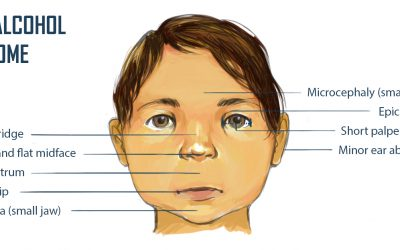 Foetal Alcohol Spectrum Disorders: What Paediatric Providers Need to Know